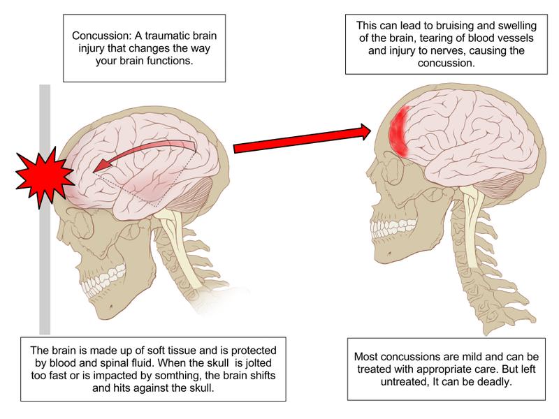 800px-Concussion_Anatomy
